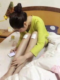 美女胳膊受伤包扎图片