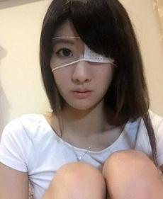 妹子眼睛受伤了